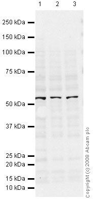 Western blot - Anti-ICAM1 antibody [15.2] (ab20)
