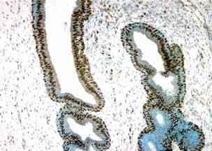 Immunohistochemistry (Formalin/PFA-fixed paraffin-embedded sections) - Anti-Estrogen Receptor beta antibody [14C8] - BSA and Azide free (ab288)
