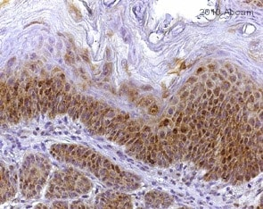 Immunohistochemistry (Formalin/PFA-fixed paraffin-embedded sections) - Anti-PKC antibody [MC5] (ab31)