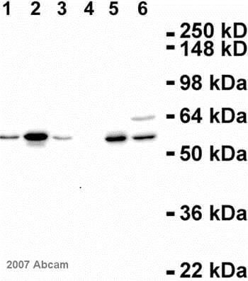 Western blot - Anti-Cyclin A2 antibody [E23.1] (ab38)