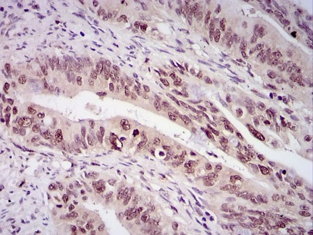 Immunohistochemistry (Formalin/PFA-fixed paraffin-embedded sections) - Anti-Survivin antibody (ab469)