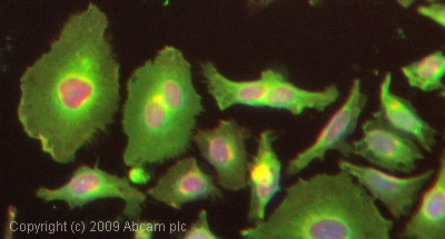 Immunocytochemistry/ Immunofluorescence - Anti-Glucose Transporter GLUT1 antibody (ab652)