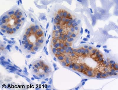 Immunohistochemistry (Formalin/PFA-fixed paraffin-embedded sections) - Anti-Cytokeratin 18 antibody [C-04] (ab668)
