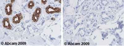 Immunohistochemistry (Formalin/PFA-fixed paraffin-embedded sections) - Anti-Cytokeratin 18 antibody [DA-7] (ab669)