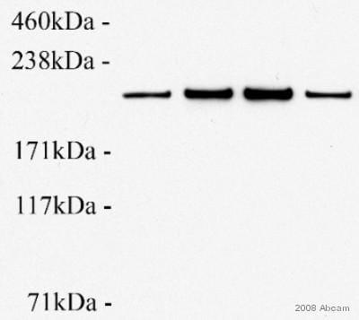 Western blot - Anti-non-muscle Myosin IIB/MYH10 antibody [3H2] (ab684)