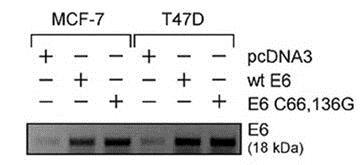 Western blot - Anti-HPV16 E6 + HPV18 E6 antibody [C1P5] (ab70)