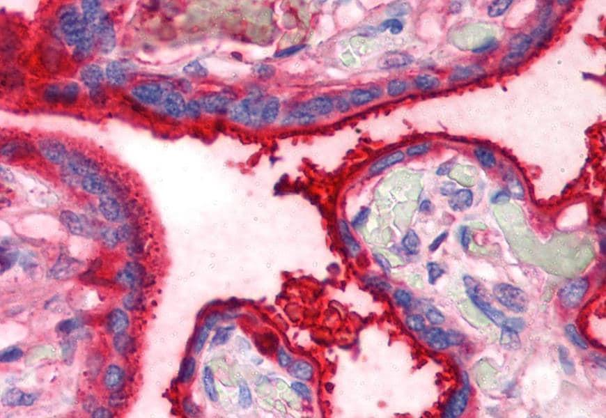 Immunohistochemistry (Formalin/PFA-fixed paraffin-embedded sections) - Anti-Transferrin antibody [HTF-14] (ab769)