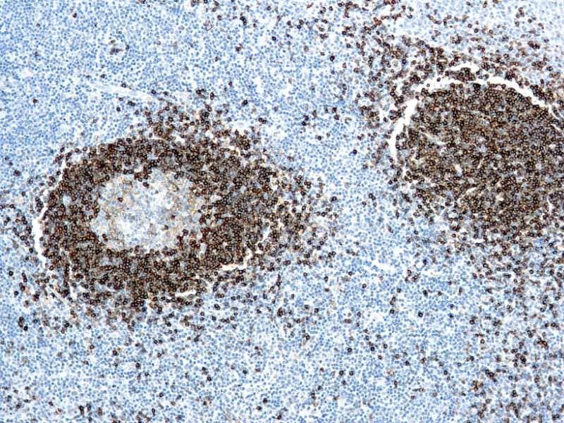 Immunohistochemistry (Formalin/PFA-fixed paraffin-embedded sections) - Anti-Hairy Cell Leukemia antibody [DBA.44] (ab779)