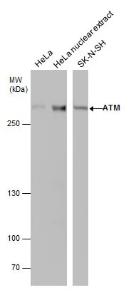 Western blot - Anti-ATM antibody [2C1 (1A1)] - BSA and Azide free (ab78)