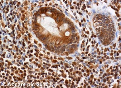 Immunohistochemistry (Formalin/PFA-fixed paraffin-embedded sections) - Anti-ATM antibody [2C1 (1A1)] - BSA and Azide free (ab78)