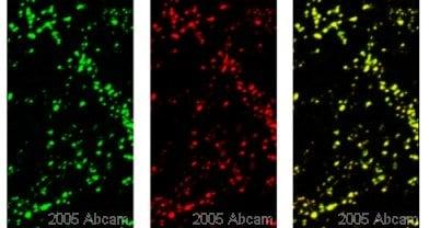 Immunocytochemistry/ Immunofluorescence - Anti-Synapsin I antibody - Synaptic Marker (ab8)