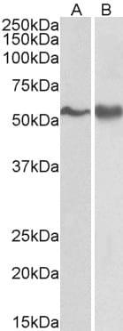 Western blot - Anti-Fyn antibody (ab802)