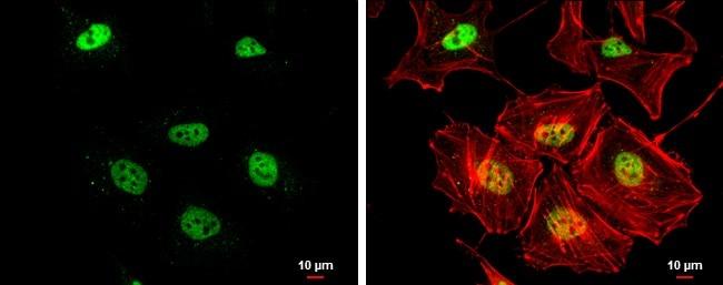 Immunocytochemistry - Anti-Rad50 antibody [13B3/2C6] (ab89)