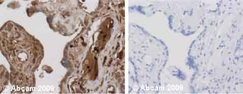 Immunohistochemistry (Formalin/PFA-fixed paraffin-embedded sections) - Anti-alpha 1 Antitrypsin antibody, prediluted (ab922)