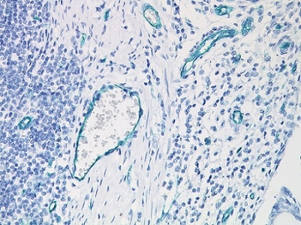 Immunohistochemistry (Formalin/PFA-fixed paraffin-embedded sections) - Anti-CD31 antibody [JC/70A], prediluted (ab958)