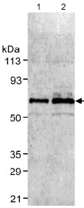 Western blot - Anti-Glucose 6 Phosphate Dehydrogenase antibody (ab993)