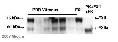 Western blot - Anti-Factor XII heavy chain antibody [B7C9] (ab1007)