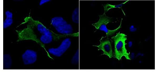 Immunocytochemistry/ Immunofluorescence - Anti-DDDDK tag antibody (ab1162)