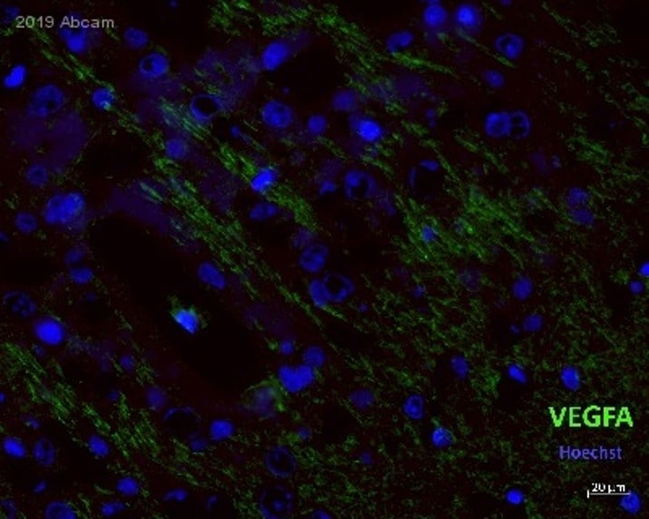 Immunohistochemistry (PFA perfusion fixed frozen sections) - Anti-VEGFA antibody [VG-1] (ab1316)