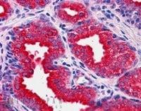 Immunohistochemistry (Formalin/PFA-fixed paraffin-embedded sections) - Anti-MKP-1 antibody (ab1351)