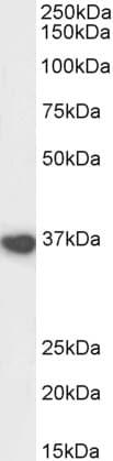 Western blot - Anti-ATF-4 antibody - C-terminal (ab1371)