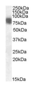 Western blot - Anti-Cortactin antibody (ab1374)