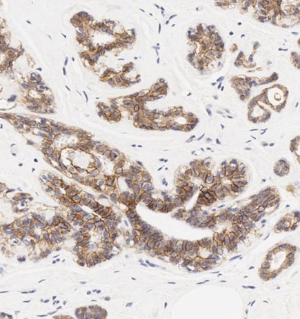 Immunohistochemistry (Formalin/PFA-fixed paraffin-embedded sections) - Anti-E Cadherin antibody [HECD-1] - Intercellular Junction Marker (ab1416)