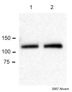 Western blot - Anti-E Cadherin antibody [HECD-1] - Intercellular Junction Marker (ab1416)