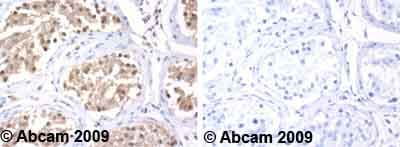 Immunohistochemistry (Formalin/PFA-fixed paraffin-embedded sections) - Anti-Hsc70 antibody (ab1427)