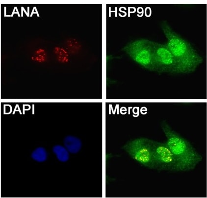 Immunofluorescence - Anti-Hsp90 [S88] antibody (ab1429)
