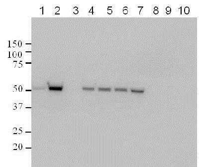 Western blot - Anti-p53 (phospho S15) antibody (ab1431)