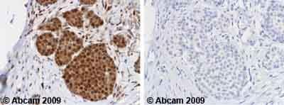 Immunohistochemistry (Formalin/PFA-fixed paraffin-embedded sections) - Anti-DOK2 antibody (ab1677)