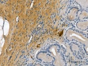 Immunohistochemistry (Formalin/PFA-fixed paraffin-embedded sections) - Anti-TNF alpha antibody [52B83] (ab1793)