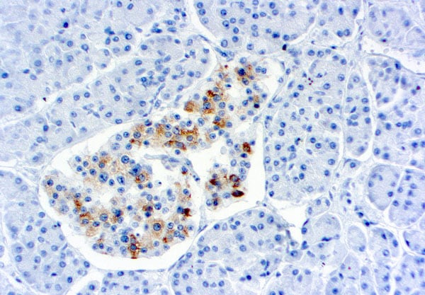 Immunohistochemistry (Formalin/PFA-fixed paraffin-embedded sections) - Anti-TIMP2 antibody [3A4] (ab1828)