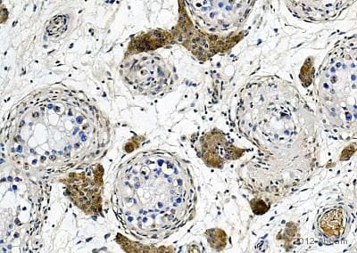 Immunohistochemistry (Formalin/PFA-fixed paraffin-embedded sections) - Anti-Apolipoprotein E antibody [D6E10] - BSA and Azide free (ab1906)