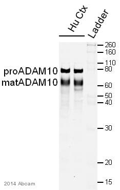 Western blot - Anti-ADAM10 antibody (ab1997)