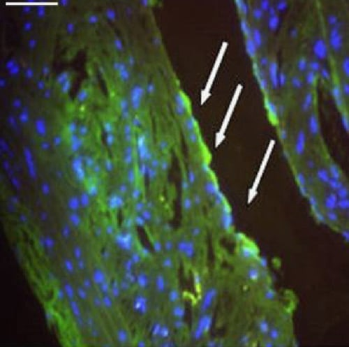 Immunocytochemistry/ Immunofluorescence - Anti-Respiratory Syncytial Virus antibody [8B10] (ab10016)