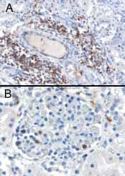 Immunohistochemistry (Formalin/PFA-fixed paraffin-embedded sections) - SH3BP1 antibody (ab10103)