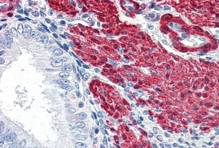 Immunohistochemistry (Formalin/PFA-fixed paraffin-embedded sections) - Anti-TAGLN/Transgelin antibody (ab10135)