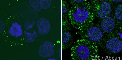 Immunocytochemistry/ Immunofluorescence - Anti-SSX2IP antibody (ab10256)