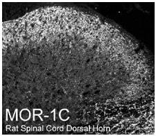 Immunohistochemistry (PFA perfusion fixed frozen sections) - Anti-Mu Opioid Receptor splice variant antibody (ab10306)