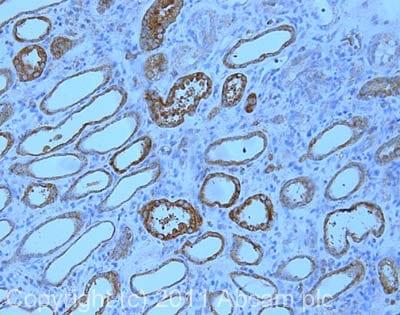 Immunohistochemistry (Formalin/PFA-fixed paraffin-embedded sections) - Anti-BNIP3 antibody [ANa40] (ab10433)