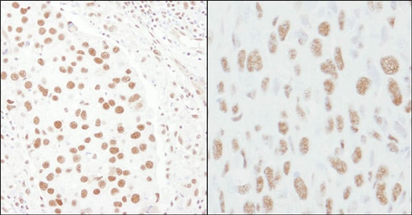 Immunohistochemistry (Formalin/PFA-fixed paraffin-embedded sections) - Anti-CA150 antibody (ab10481)