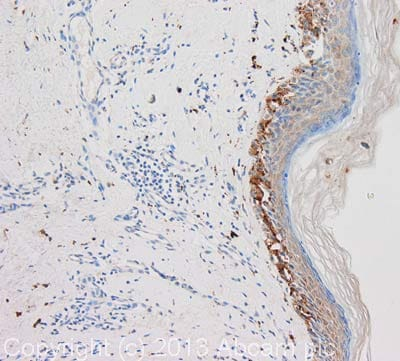 Immunohistochemistry (Formalin/PFA-fixed paraffin-embedded sections) - Anti-TNF beta antibody [AT15A3] (ab100844)