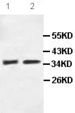 Western blot - Anti-OPCML antibody (ab100923)