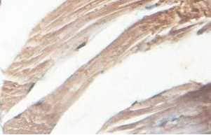 Immunohistochemistry (Formalin/PFA-fixed paraffin-embedded sections) - Anti-ABLIM2 antibody (ab100926)