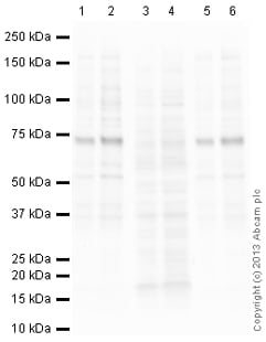 Western blot - Anti-BTK (phospho Y223) antibody (ab101233)