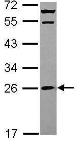 Western blot - Anti-MRPS26 antibody (ab101362)