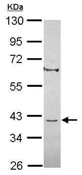 Western blot - Anti-C8orf48 antibody (ab101366)