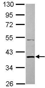 Western blot - Anti-SH3GLB2 antibody (ab101434)